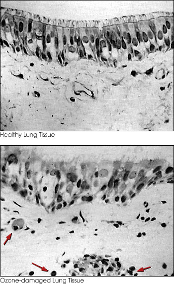 Micrographs of Human Lung Tissue