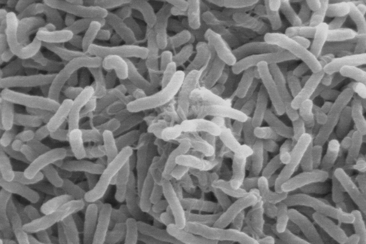 Vibrio cholerae—the bacteria that cause cholera—can live in the guts of microscopic aquatic animals