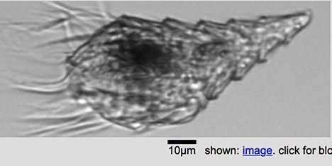Picture of a ciliate taken by the IFCB